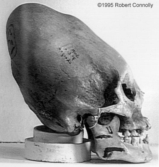 UFO.alien.skull