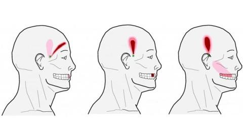 Découvrez 6 points d'acupression puissants pour soulager les maux de tête