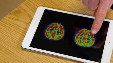 Le Dr Andrew Newberg montre les effets de la prière sur le cerveau