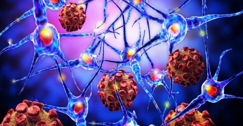 Il est désormais possible de faire une greffe de neurones