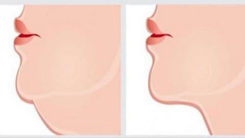 Les meilleurs exercices pour se débarrasser du double menton