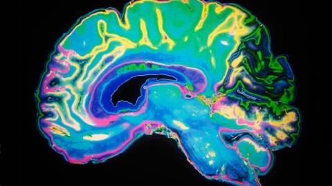 Ce nouveau traitement contre maladie d'Alzheimer rétablit le fonctionnement normal de la mémoire déficiente!