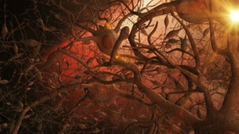 Une nouvelle technologie utilisant des ultrasons restaure la mémoire des patients atteints de la maladie d'Alzheimer