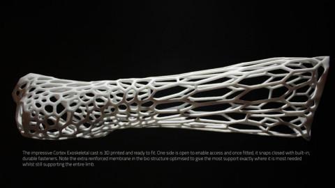 Il invente un plâtre révolutionnaire qui respire grâce à une imprimante 3D