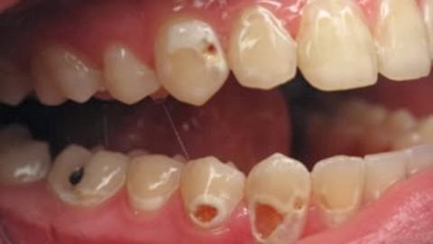 8 aliments « sans danger » qui détruisent vos dents sans que vous le sachiez