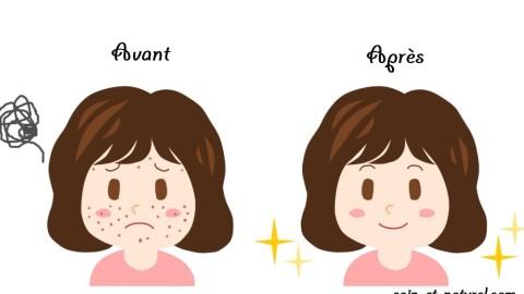 5 aliments qu'il est conseillé d'éviter si vous souhaitez avoir une belle peau