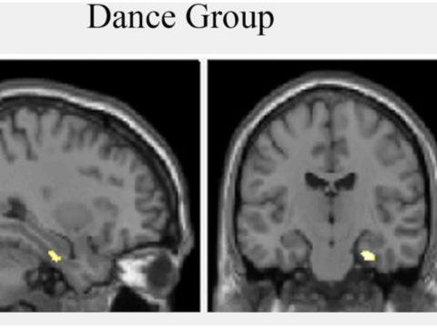 La danse augmente le volume de l'hippocampe cérébral