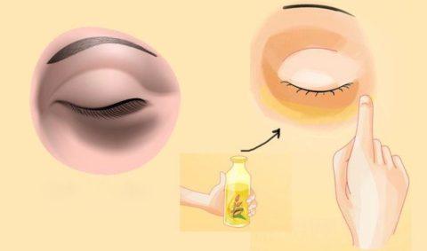 5 remèdes naturels pour diminuer les cernes sous les yeux
